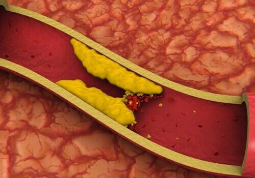 Cholesterol-Reducing Juices