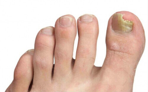 Foot Fungus - Top Tips for Prevention