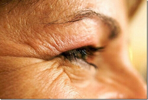 Food and Habits That Cause Premature Wrinkles