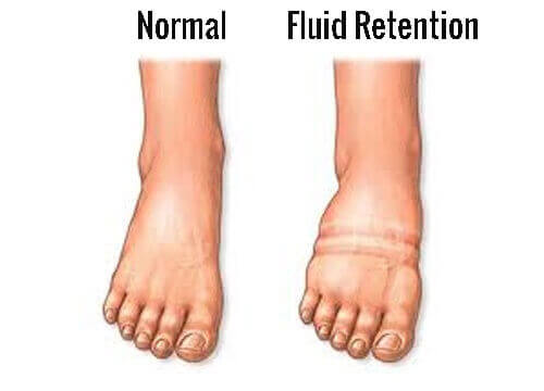 How to Fight Fluid Retention