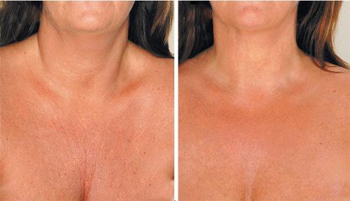 2-chest-wrinkles-8