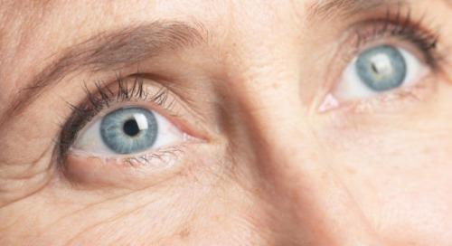 4-eye-wrinkles-6