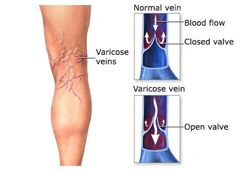 10 Herbal Remedies for Varicose Veins
