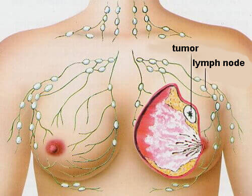 4 Most Common Types of Cancer in Women