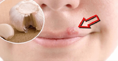 Home Remedies to Heal Cold Sores Fast