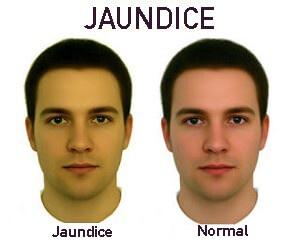 jaundice1
