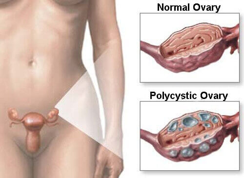 Natural Remedies for Polycystic Ovarian Syndrome