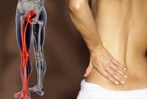 How to Treat Sciatica and Lower Back Pain