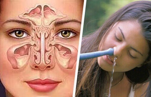 How to Treat Sinusitis Naturally