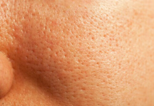 How to Naturally Close Pores